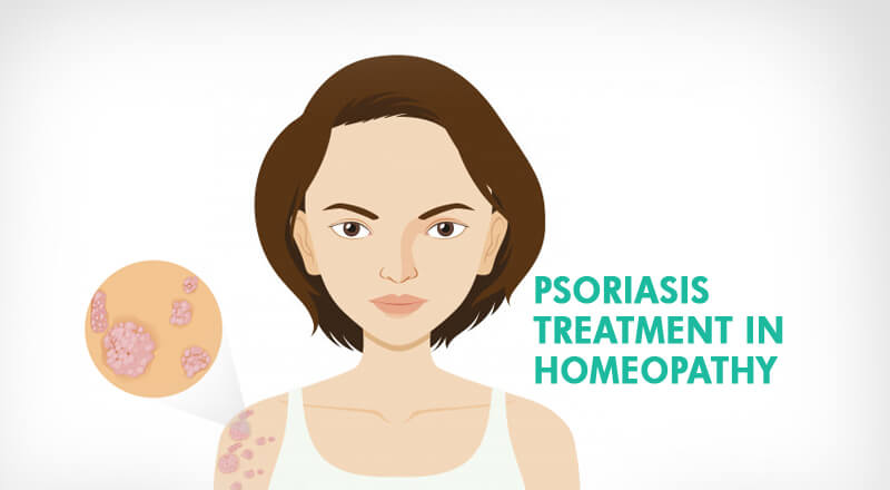 Psoriasis treatment in homeopathy – Everything you should know