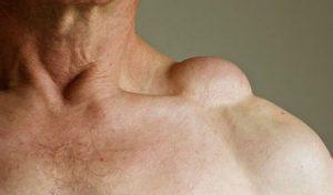 lipoma on shoulder